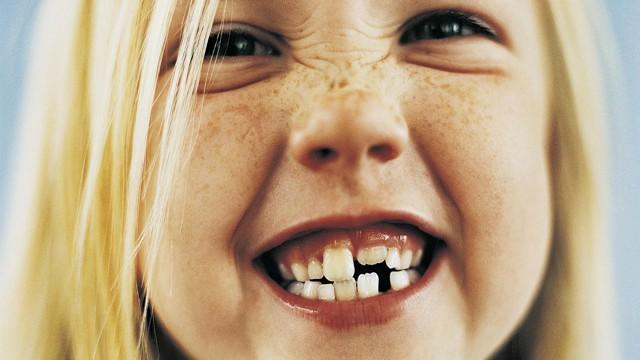 foto-cade-primo-dentino