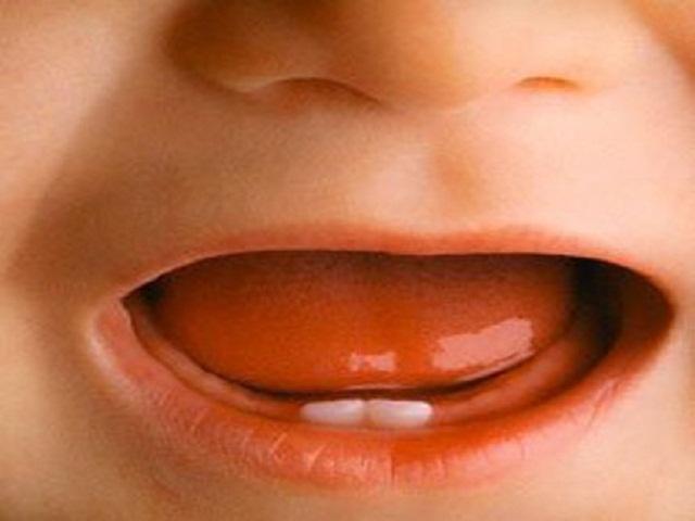 bambina denti