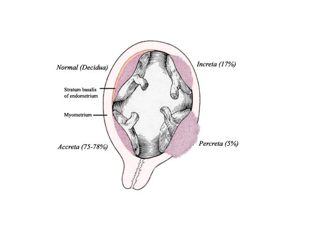 Placenta_accreta