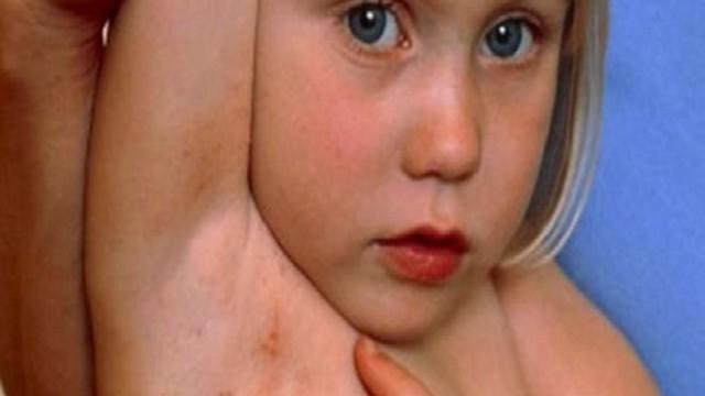 foto_mollusco_contagioso_bambini