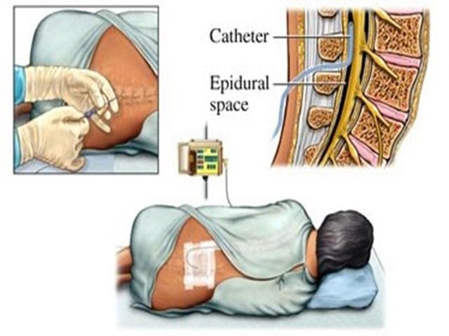 epidurale