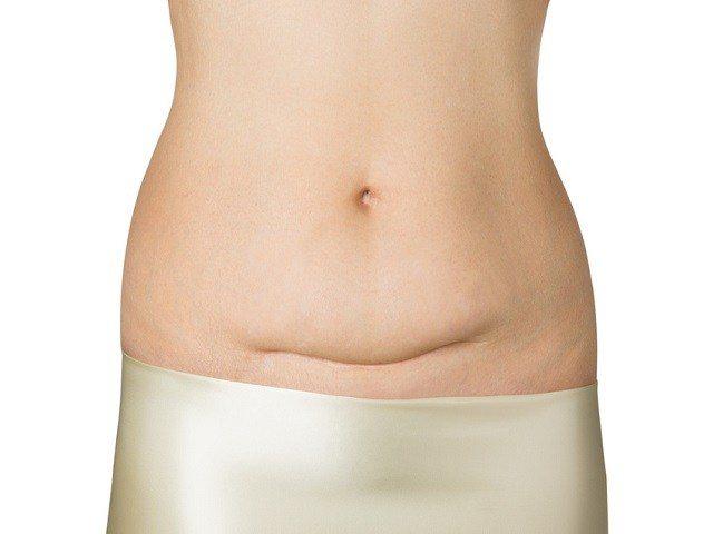 Cicatrice del cesareo