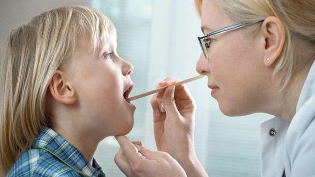streptococco gola senza febbre