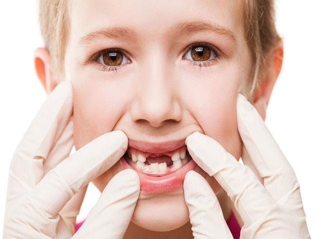 Perché i denti da latte del bambino non vanno buttati