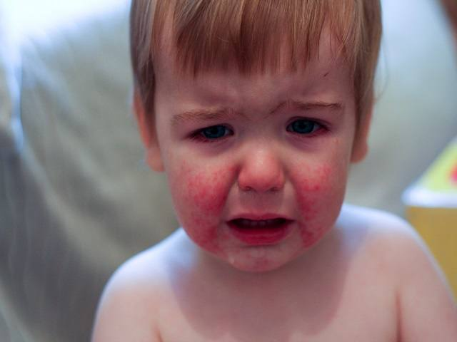 bambino con guance rosse