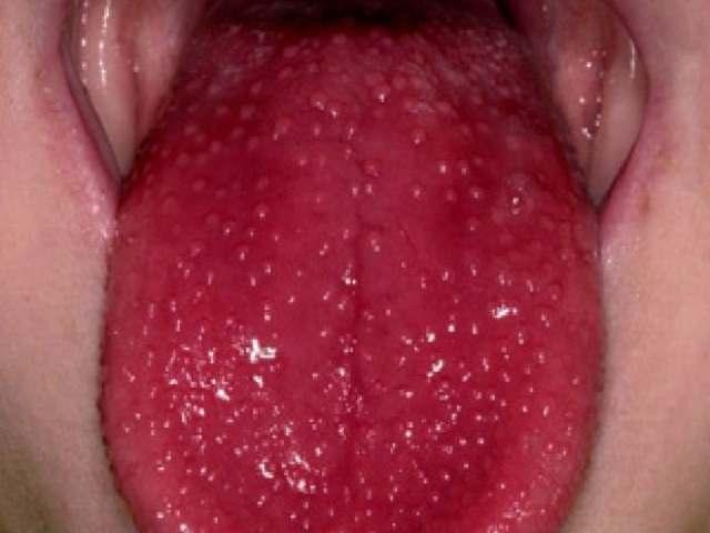 lingua a lampone