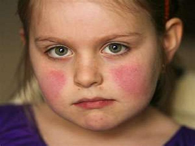 quinta malattia bambina