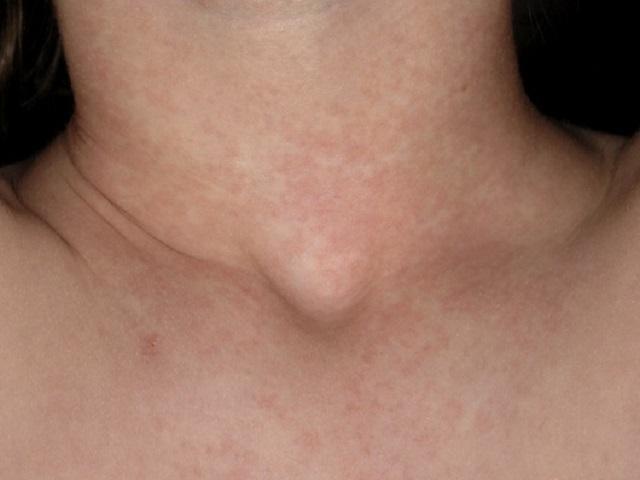 scarlattina linfonodi collo ingrossati