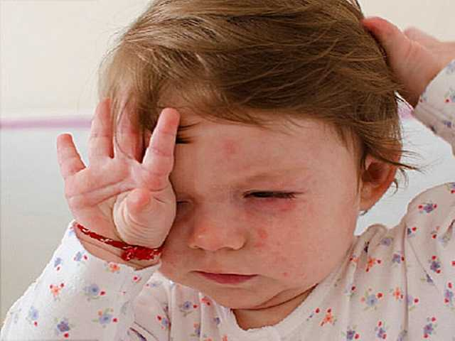 sesta malattia bambino
