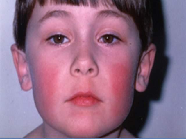 quinta malattia bambini