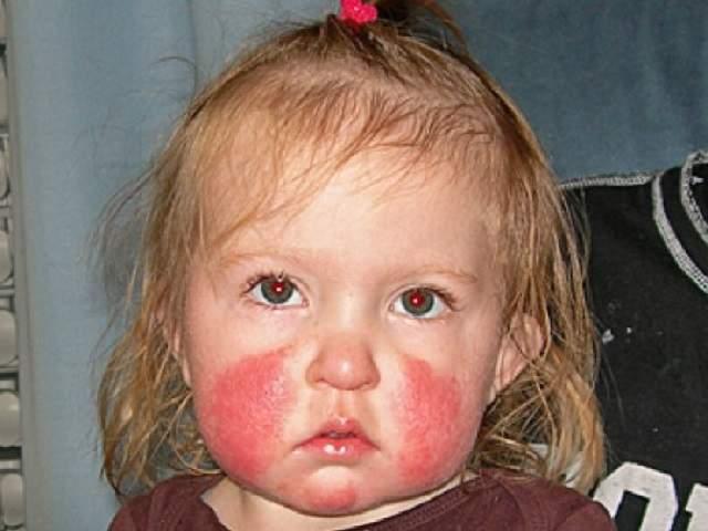 quinta malattia guance rosse