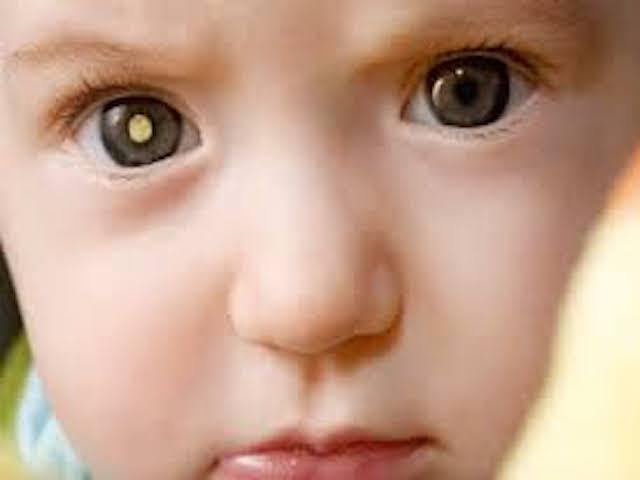 foto_retinoblastoma