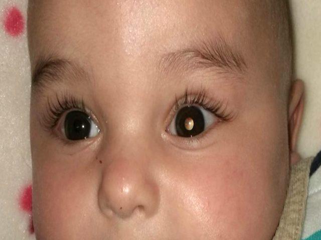 foto_retinoblastoma_bimbo
